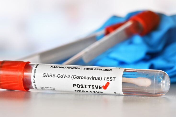 Coronavirus test concept - vial sample tube with cotton swab, red checkmark next to word positive, blurred vials and blue nitrile gloves background.