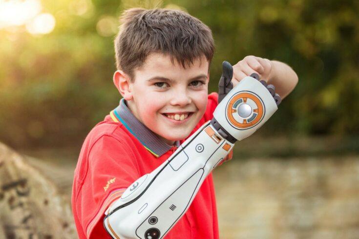 Cameron Miller Open Bionic Hero Arm